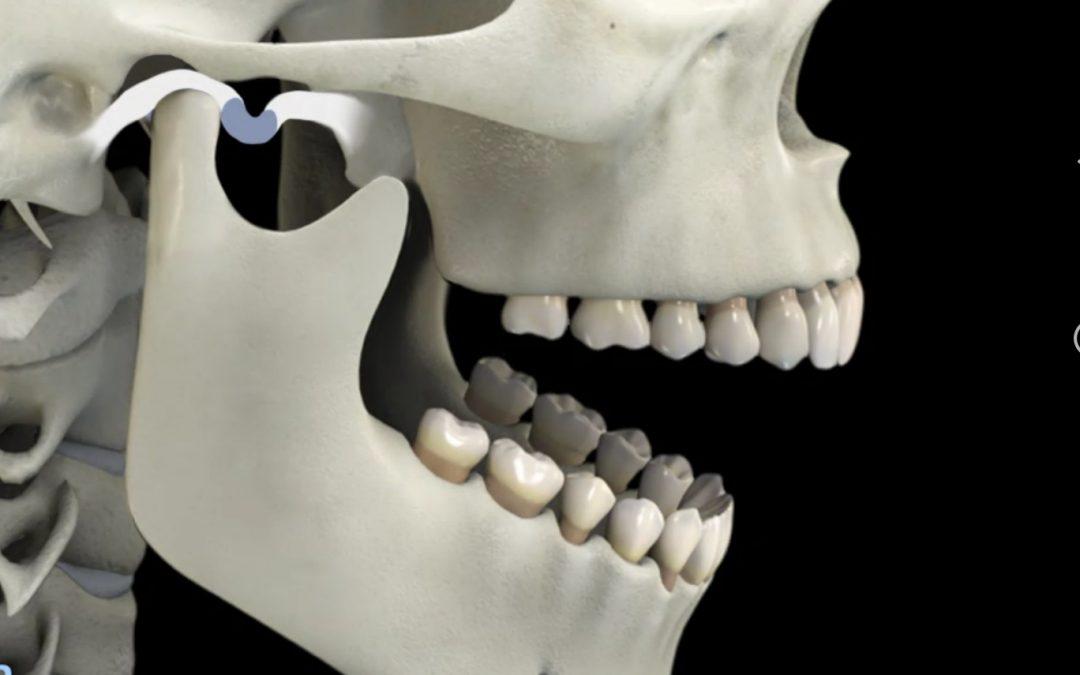 Bruxismo y apretamiento dentario