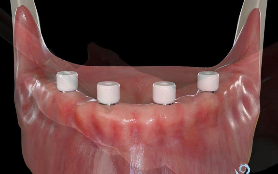 Implantes dentales en situaciones comprometidas